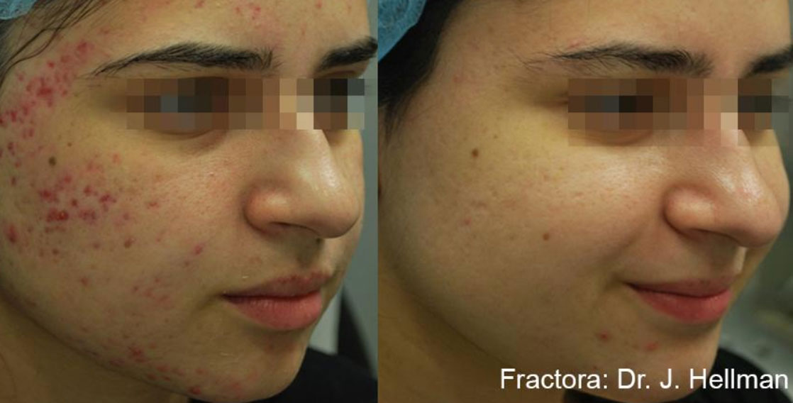 FRACTORA before after